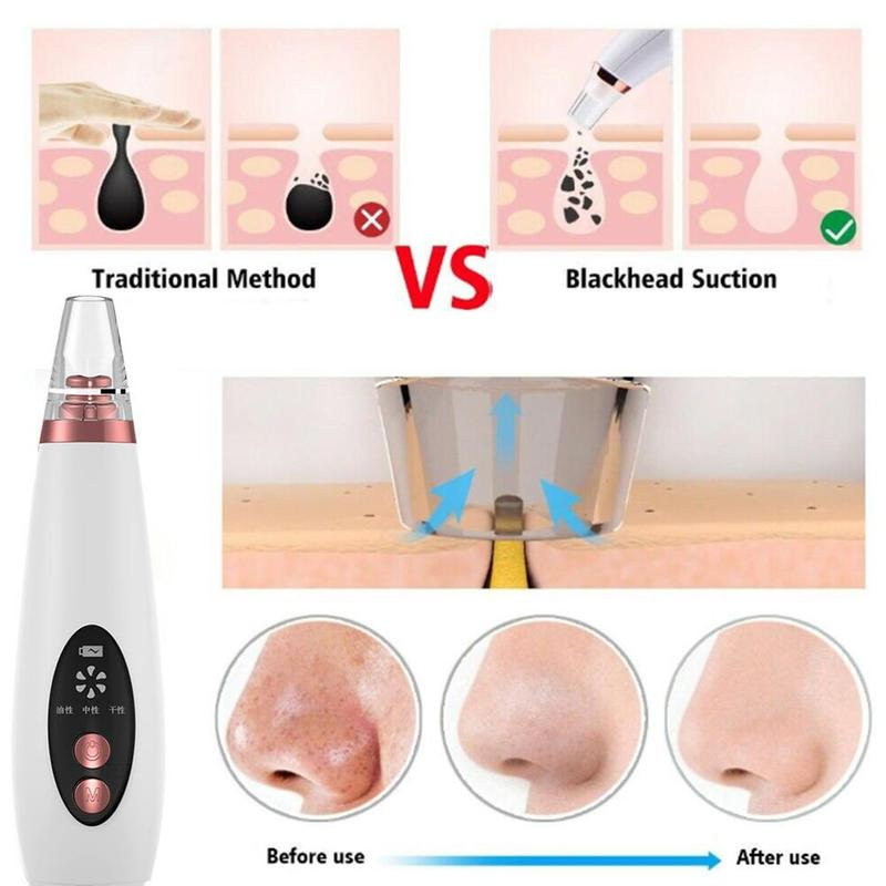 Blackhead Remover Face Pore Vacuum Skin Care Acne Pore Cleaner Pimple Removal Vacuum Suction Facial Tools USB Rechargeable